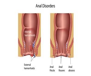 fistul-cesitleri-nelerdir